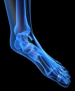 X-ray image of foot showing the bones affected by over pronation